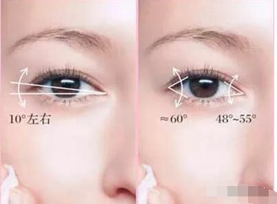 开眼角手术后有哪些注意事项?