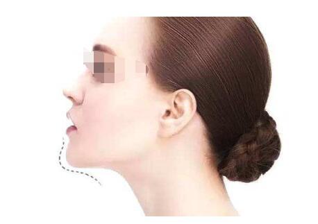 女性垫下巴手术有哪些风险