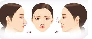 达拉斯隆鼻手术摒弃了传统的隆鼻塑形