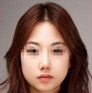 激光美白嫩肤案例:皮肤变得白皙细嫩