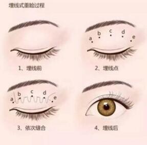 """埋线双眼皮术后是不容易出现""""线崩""""的情况"""