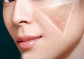 激光祛斑让脸部皮肤恢复光滑美白的形象