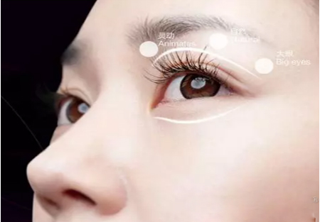 微创无痕双眼皮手术 真正的无痕体验