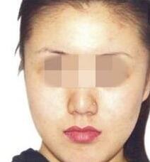 磨骨术后三个月让自己的面部线条更加完美