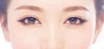 全切双眼皮效果是可以长久保持的