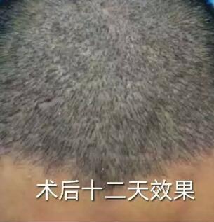 植发术后十二天头顶形象便好戏连台