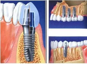 种植牙后可以做核磁共振