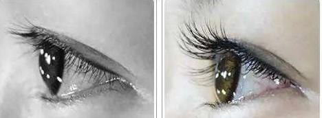 睫毛移植术效果怎么样?与睫毛孕睫术之间有什么区别?