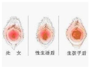 处女膜修复后出血正常吗?