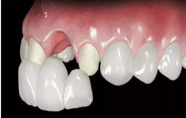 烤瓷牙术后要如何保护呢?
