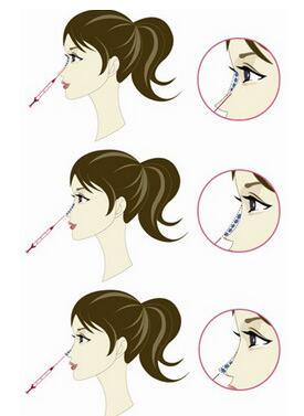 所有隆鼻手术方式开放公布