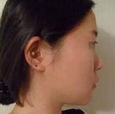 隆鼻案例:做完后每天都是开开心心的