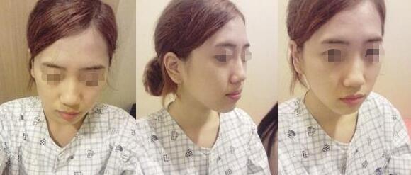 隆鼻手术后的4个月轻松让我拥有高鼻梁