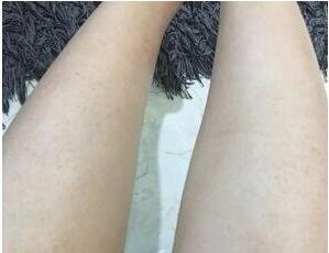 小腿脱毛半个月,终于可以放心秀美腿