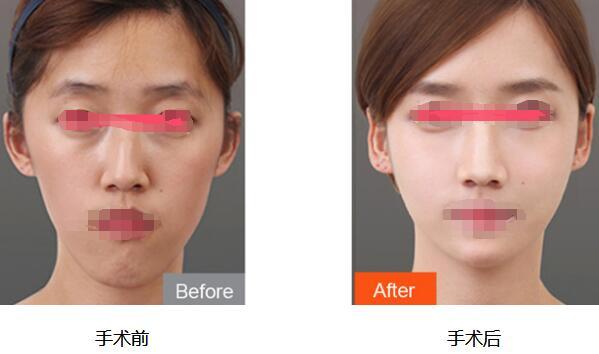玻尿酸垫眉弓和假体垫眉弓的正确认识