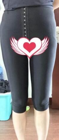 大腿吸脂手术案例:术后一个月让你拥有一双纤细的大腿