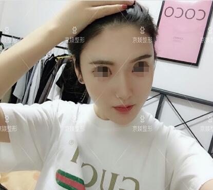 河北邯郸京美全脸填充案例:脸也比以前漂亮多