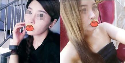 隆鼻失败修复案例:隆鼻失败修复让我的美貌回来了