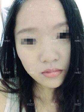 河北邯郸京美瘦脸针案例:脸真的瘦了