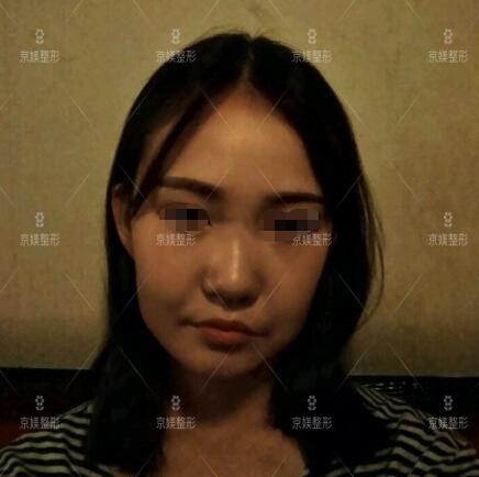 河北邯郸京美线雕瘦脸针案例:脸瘦走路都带风