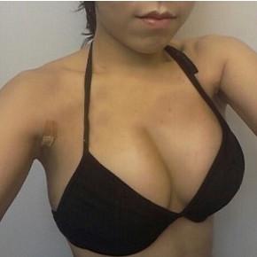 自体脂肪隆胸手术案例:自体脂肪隆胸让我爱情工作双丰收