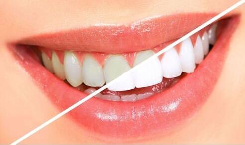牙齿美白有什么方法