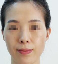 """面部填充自体脂肪案例:一个月后不被人叫""""阿姨"""""""