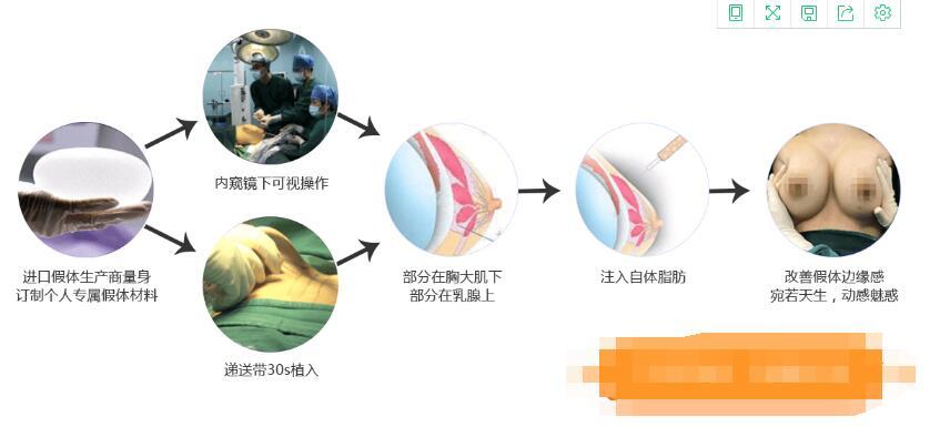 八维仿生胸假体植入过程仅需30分钟