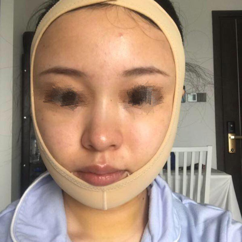 吸脂瘦脸案例:我的脸终于不是那么大了