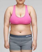 腰腹吸脂案例:30天后简直和以前判若两人