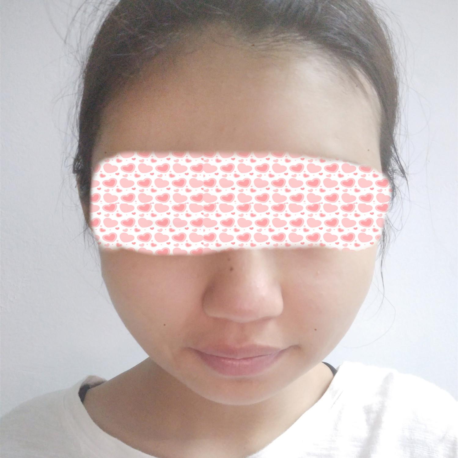 自体脂肪面部填充案例:让我脸变年轻了好多