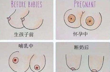 好不容易变大胸产后哺乳后会下垂吗