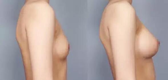 假体隆胸切口如何选