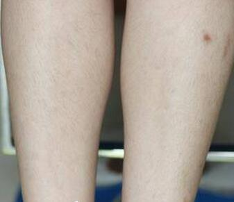 激光脱腿毛术后93天腿部干净整洁