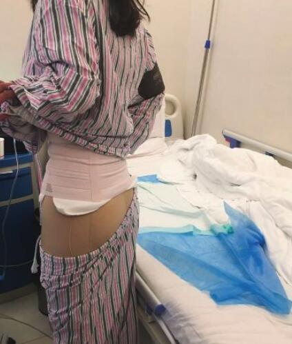 在北京一共花2万左右做腰腹和大腿吸脂手术心得分享