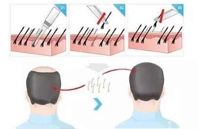 一个完整的头发移植手术治疗流程