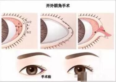 【整形精品】开内眼角和开外眼角有什么区别