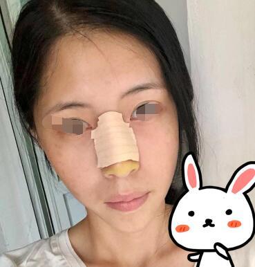 自体软骨隆鼻3个月后鼻子会更细致