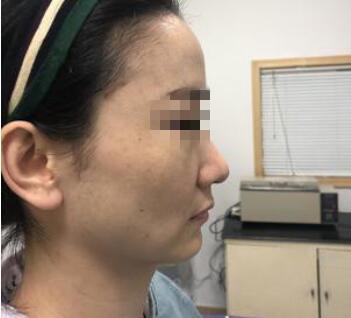 玻尿酸填充全脸让我告别这个凹凸的脸