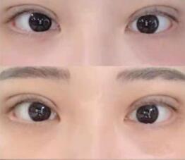 不对称的一单一双眼睛需要做的双眼皮手术