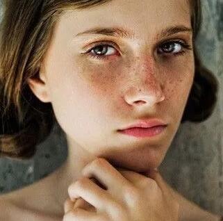 脸上有斑的女生颜值会比别人低