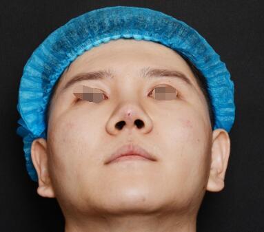 整形医生揭露鼻雕微综合手术后的样子