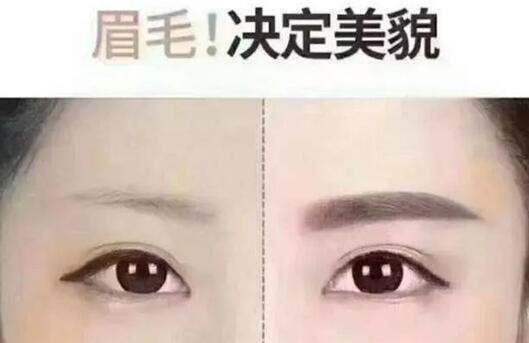 眉毛对颜值太重要 眉毛种植三大优势值得了解