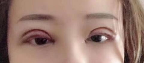 网红女主播公开自己割双眼皮过程