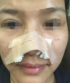 鼻翼缩小手术的方式因人而异