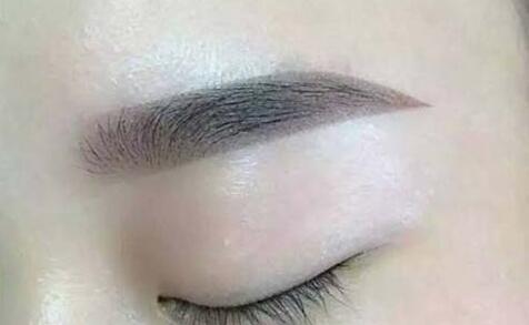 教你眉毛种植前怎么选择植发医院