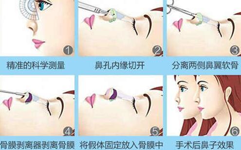 假体隆鼻的手术操作并不复杂