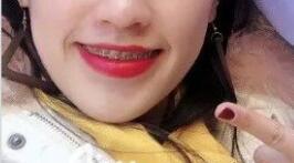 牙齿畸形矫正让我可以笑的更灿烂