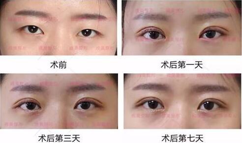 长沙雅美9月爆品项目翘睫美瞳术,抓紧了解一下