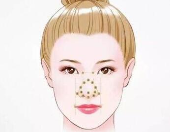 要想恢复鼻的外形可以做鼻部再造手术